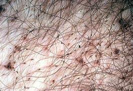 Pubic lice crabs Symptoms risk factors and treatment